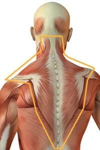 knoop in nekspier hoofdpijn